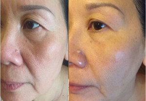 Tiết lộ 3 cách làm trị nám da mặt bằng nghệ