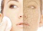 Giải quyết triệt để vấn đề da khô