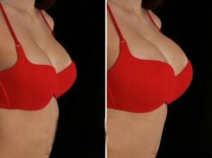 kem nở ngực tự nhiên Best Breast Enlargement Cream