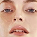Lời khuyên chọn kem dưỡng tốt nhất cho da khô